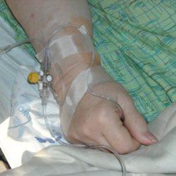 Pourquoi je ne suis pas fan de la chirurgie bariatrique (ou chirurgie de l'obésité) ?