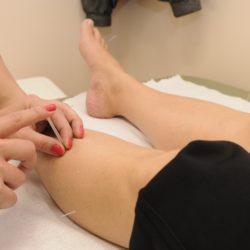 Quels sont les avantages de l'acupuncture quand on est ronde ?