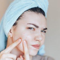 Acné et problèmes dermatologiques: les remèdes naturels insoupçonnés